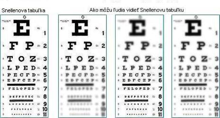 21a964de1 Zistenie nekorigovanej zrakovej ostrosti. Očný odborník hodnotí  rozlišovaciu schopnosť oka pomocou optotypov.