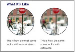 Vision with and without a Cataract - get an annual health exam