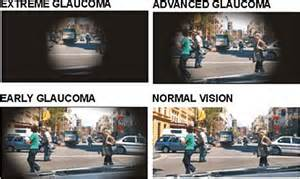 The Silent Disease- only an annual health exam can help with Glaucoma