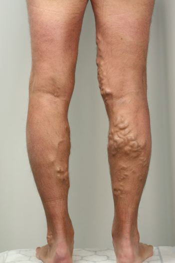 varicose veins in one leg