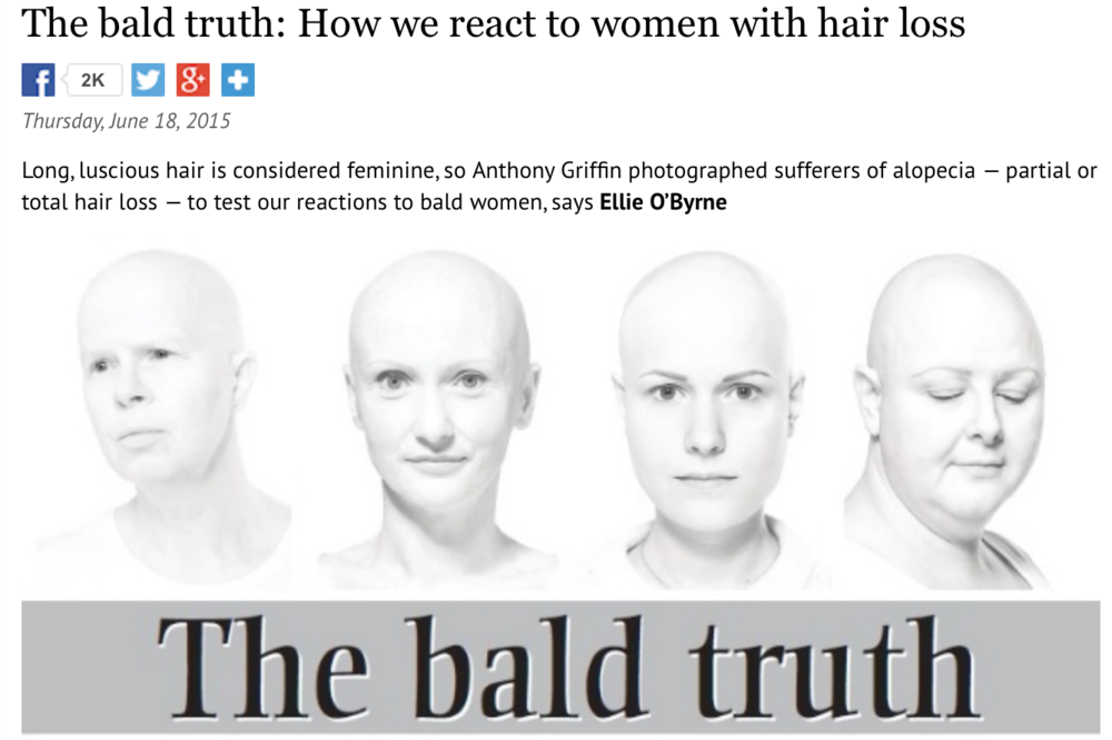 http://www.irishexaminer.com/lifestyle/features/the-bald-truth-how-we-react-to-women-with-hair-loss-337516.html