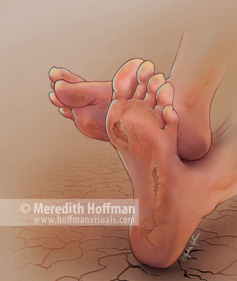 Hoffman_Eczema.jpg