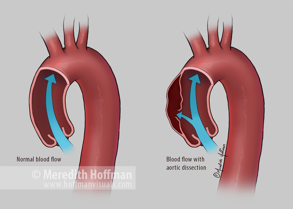 Blood flow through a normal aorta and an aorta with an aortic dissection