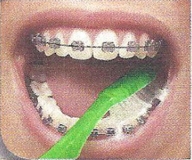 Brush the chewing surfaces of your teeth and your tongue, too. Then rinse and make sure you haven't missed any areas.
