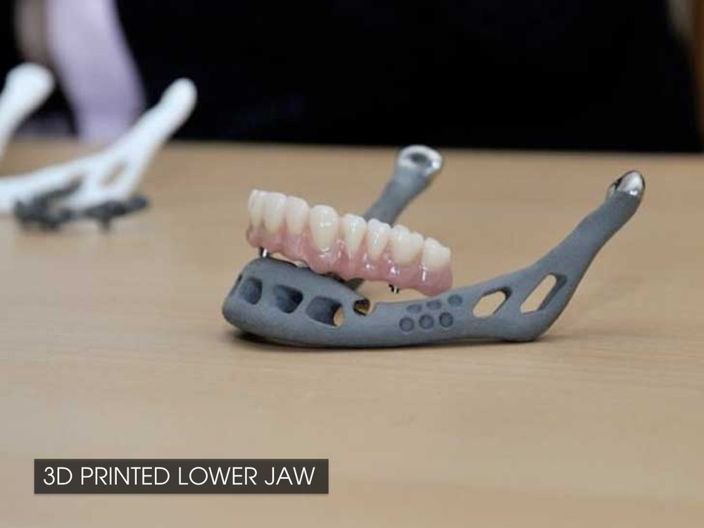 3D Printed lower jaw