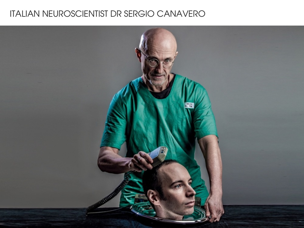 The world's first head transplant