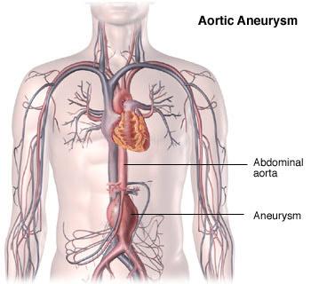 Aortic Aneurysm