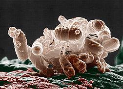 Ecoli Bacteria  ~ Anton van Leeuwenhoek