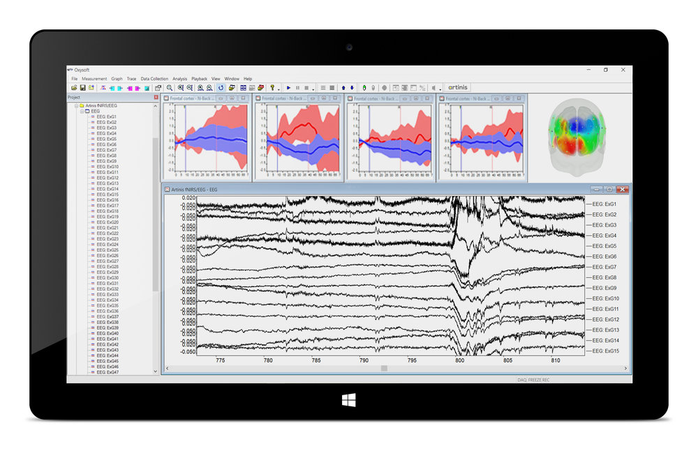 Figure 2. The NIRS-EEG software package, an Oxysoft extension to record EEG-data synchronized with NIRS data.