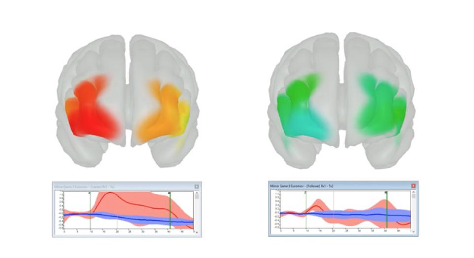 Oxysoft - Octaon brain monitoring.png