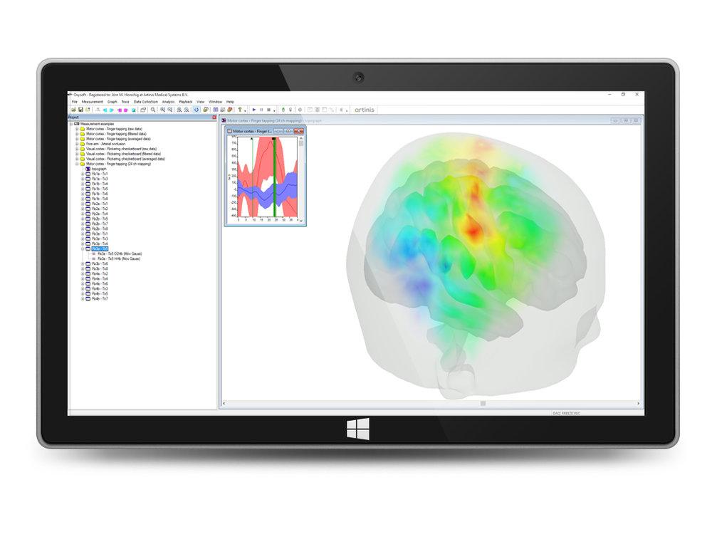 Oxysoft brain monitoring software NIRS.jpg