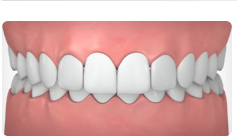 Class 2 malocclusion, called retrognathism or  overbite , occurs when the upper jaw and teeth severely overlap the bottom jaw and teeth. -   Medline Plus
