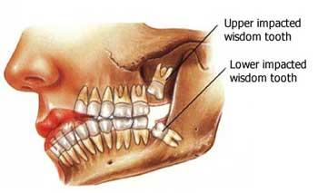wisdom teeth.jpg
