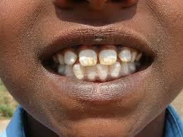 dental fluorosis.jpg