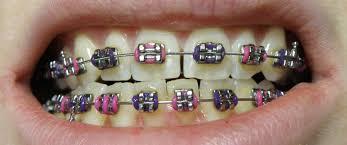 common braces problems.jpg