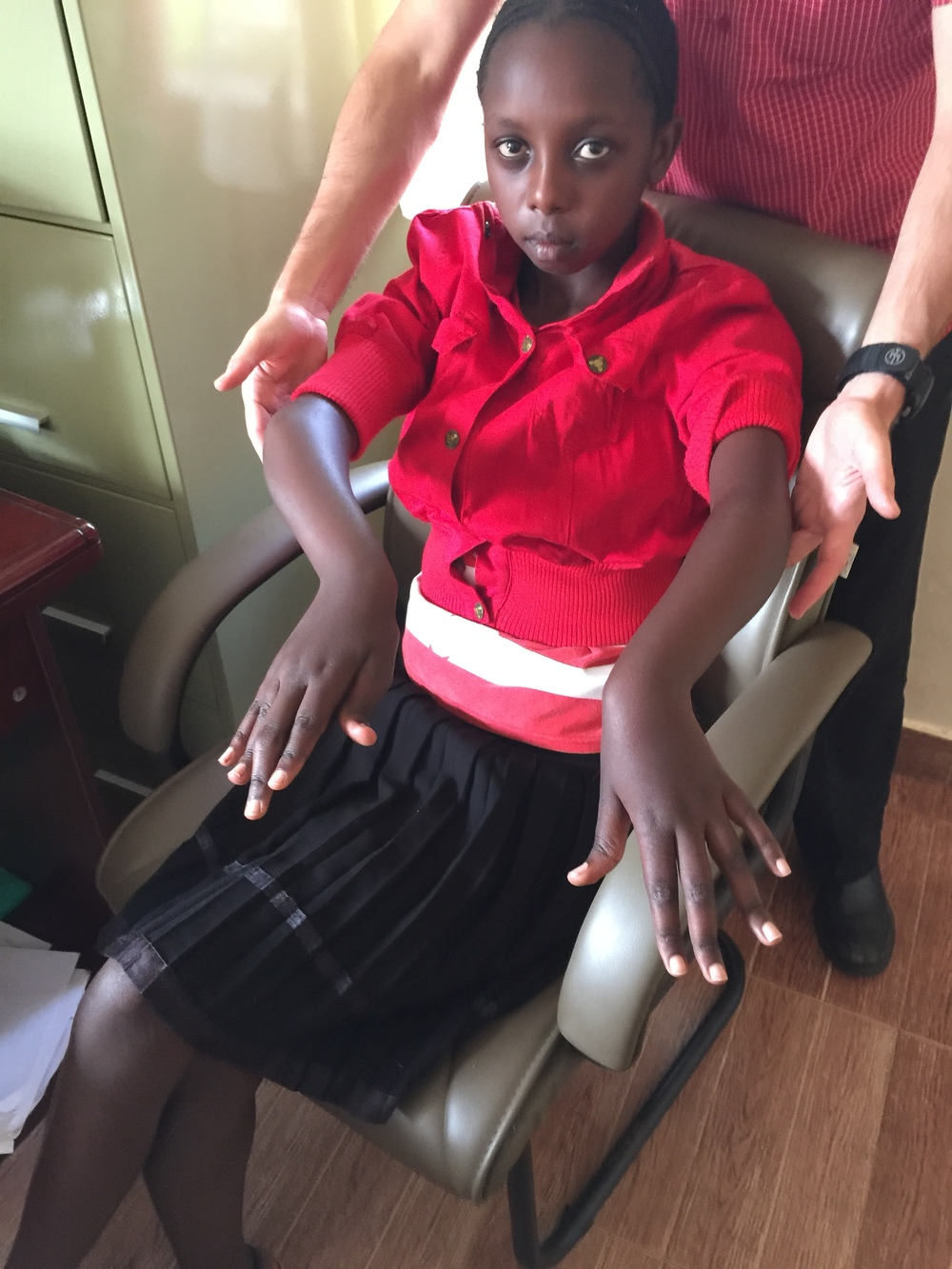 A young girl who suffers from juvenile rheumatoid arthritis. She is part of Naweza's Complex Case Care program whereby the doctors in Canada can discuss complex cases  on a bi-weekly basis  with the clinical officers in Kenya.