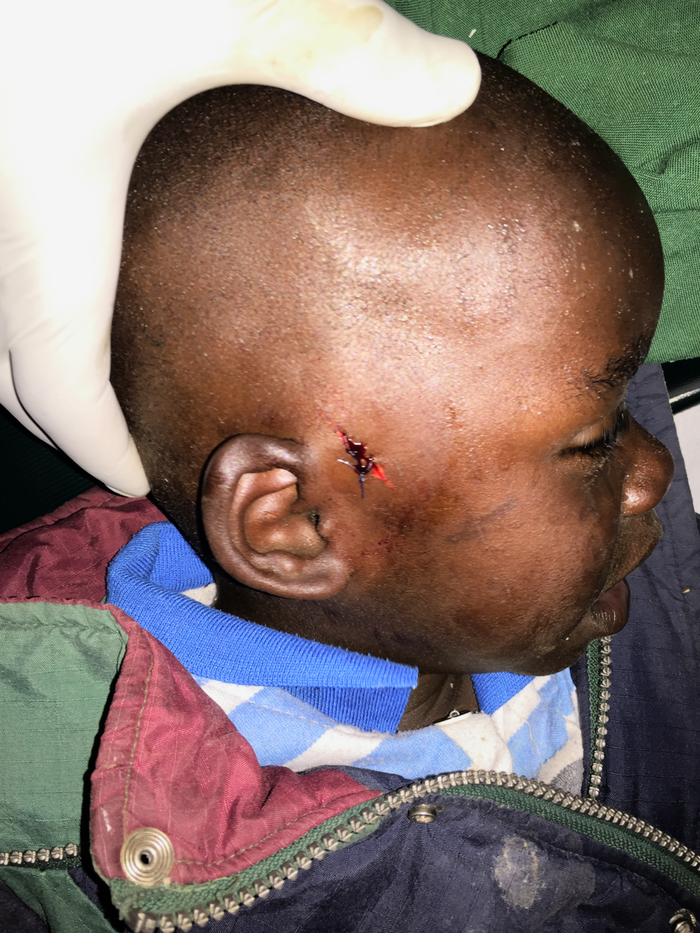 The young patient needed to have a large splinter removed. His wound was treated and stitched by Dr. Sue.