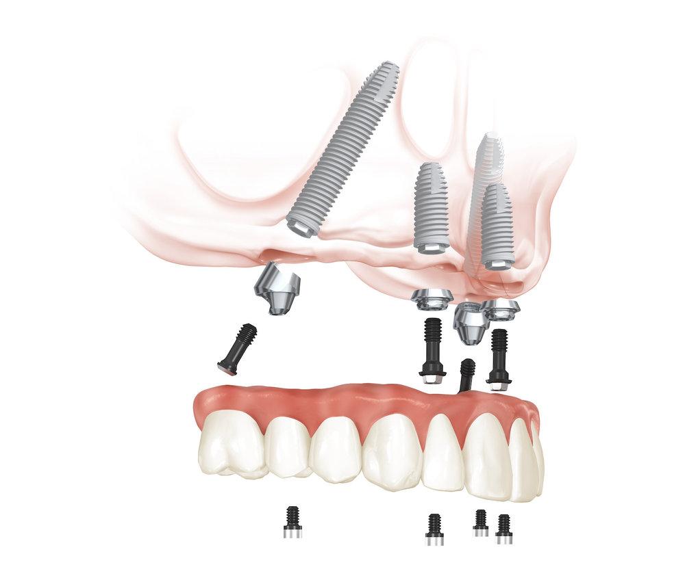 Nieuwe tanden van de onderkaak (Alle rechten voorbehouden door NobelBiocare)