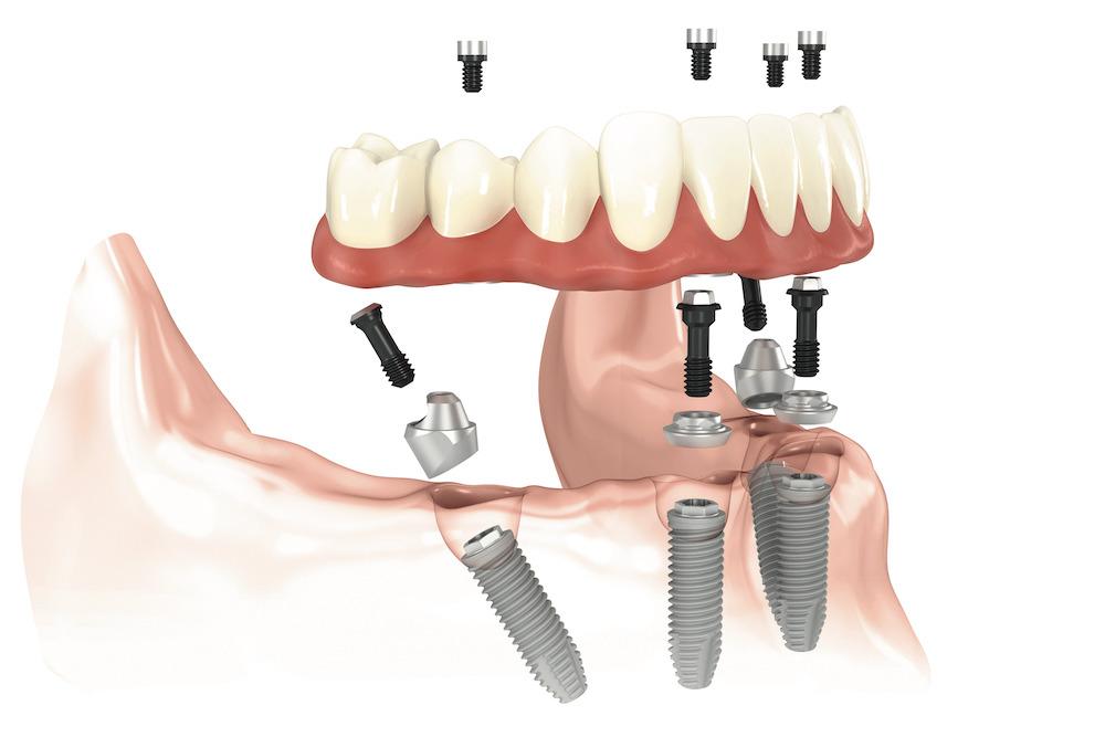Nieuwe tanden van de bovenkaak (Alle rechten voorbehouden door NobelBiocare)