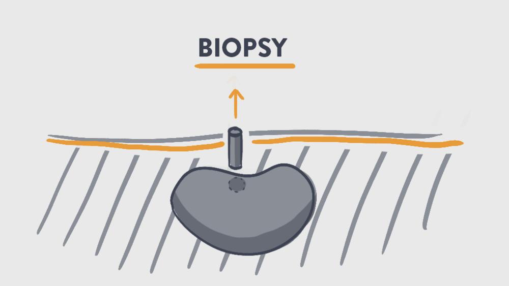 biopsy ingoraphic