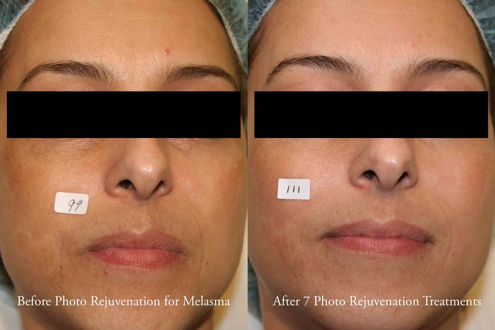 Photo Rejuvination Before and After 1 - web.jpg