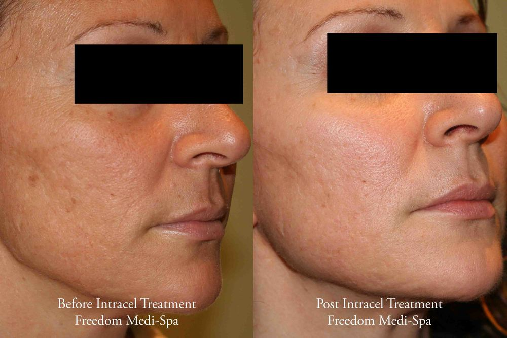 Intracel Before and After Acne Scars1.jpg
