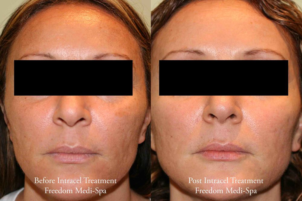 Intracel Before and After Acne Scars front.jpg
