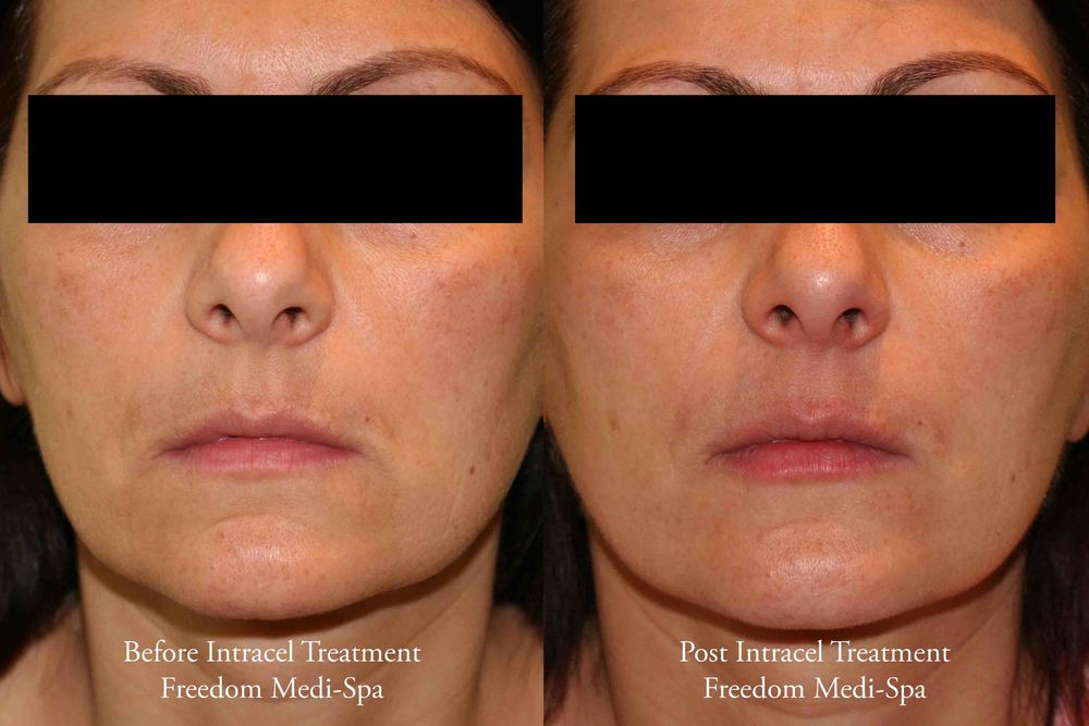 Intracel Before and After Skin Tightening_edited-1.jpg