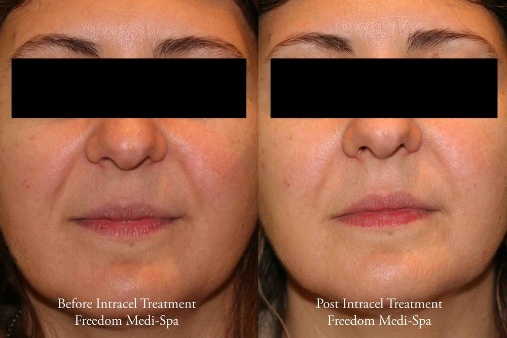 Before and After - Intracel Treatment May 2015.jpg