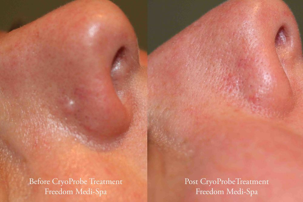 CryoProbe Before and After Benign Mole.jpg