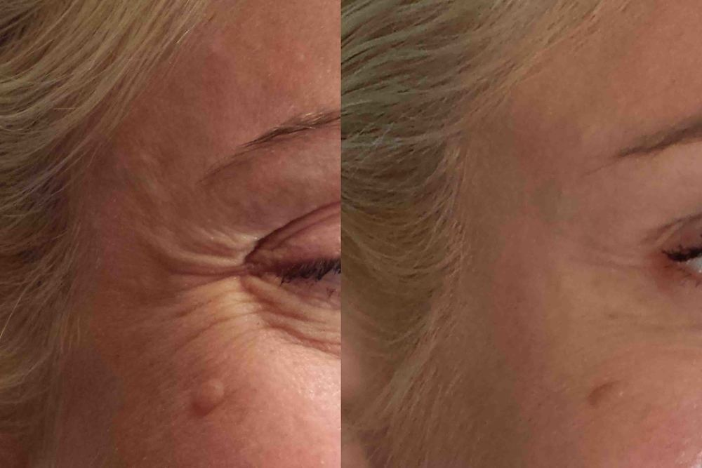 Before and After Botox treatment.