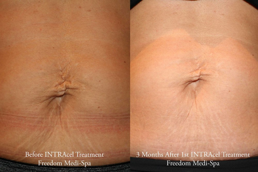 Intracel Before and After Oct 2015 Body.jpg