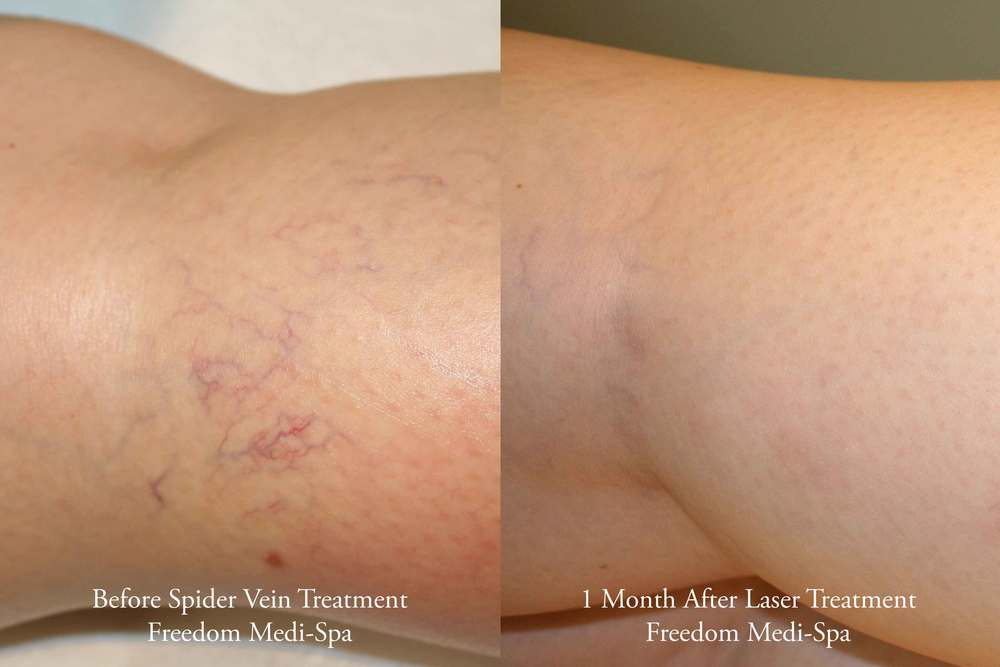 Spider-Vein-Treatment-Before-and-After-April-2014.jpg