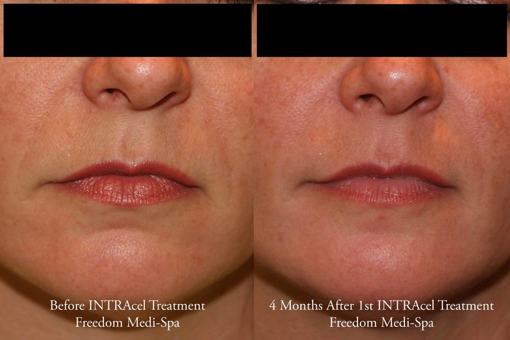 Intracel Before and After Oct 2015 Nasolabial.jpg