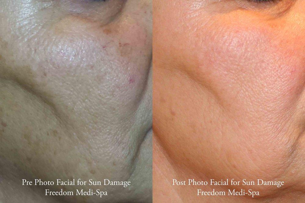 Photo Facial for Sun Damage 10-2016.jpg