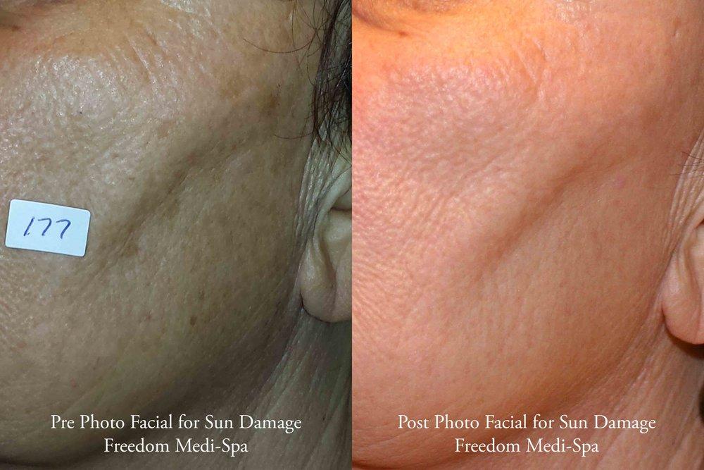 Photo Facial for Sun Damage 10-2016 2.jpg