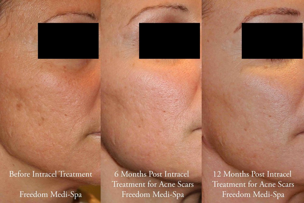 Intracel Before and After Acne Scars Nov 2016.jpg
