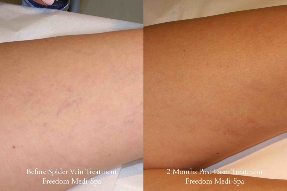 Spider Vein Treatment Before and After June 2016 c.jpg