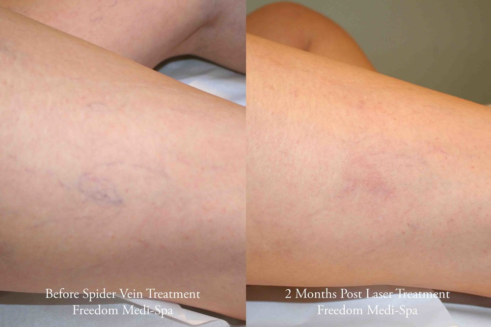 Spider Vein Treatment Before and After June 2016.jpg