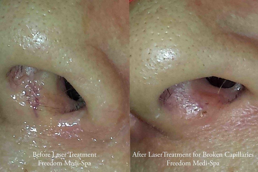 Laser Broken Capillaries Before and After Nov 2014.jpg