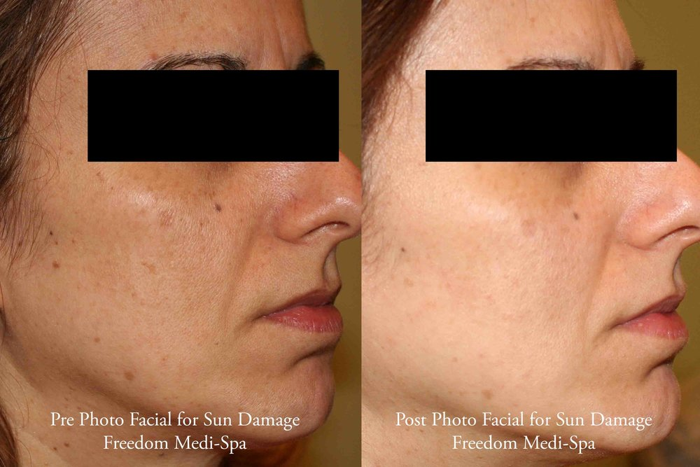 Photo Facial for Sun Damage Jan 2017.jpg