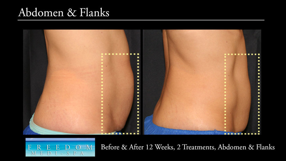 SculpSure Abs Flanks Oct 2017 5.jpg