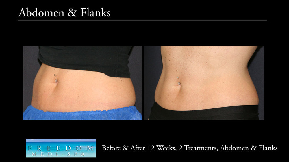 SculpSure Abs Flanks Oct 2017 4.jpg