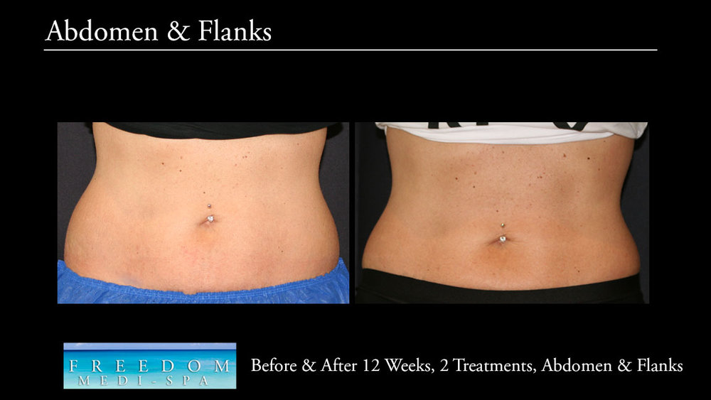 SculpSure Abs Flanks Oct 2017 3.jpg