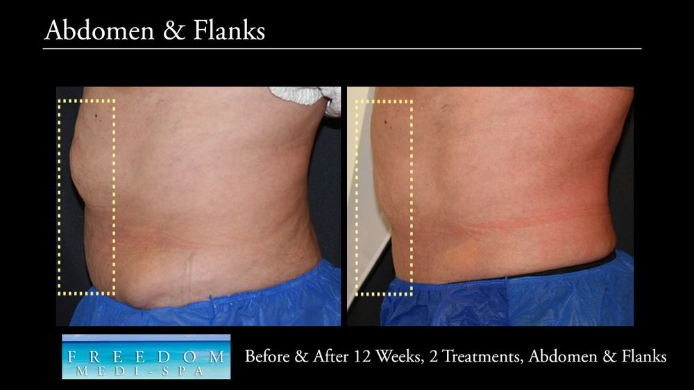 SculpSure Abs Flanks Oct 2017 2.jpg