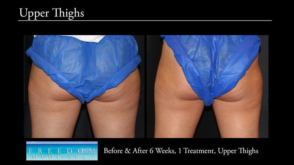 SculpSure Upper Thighs Sept 2017.jpg