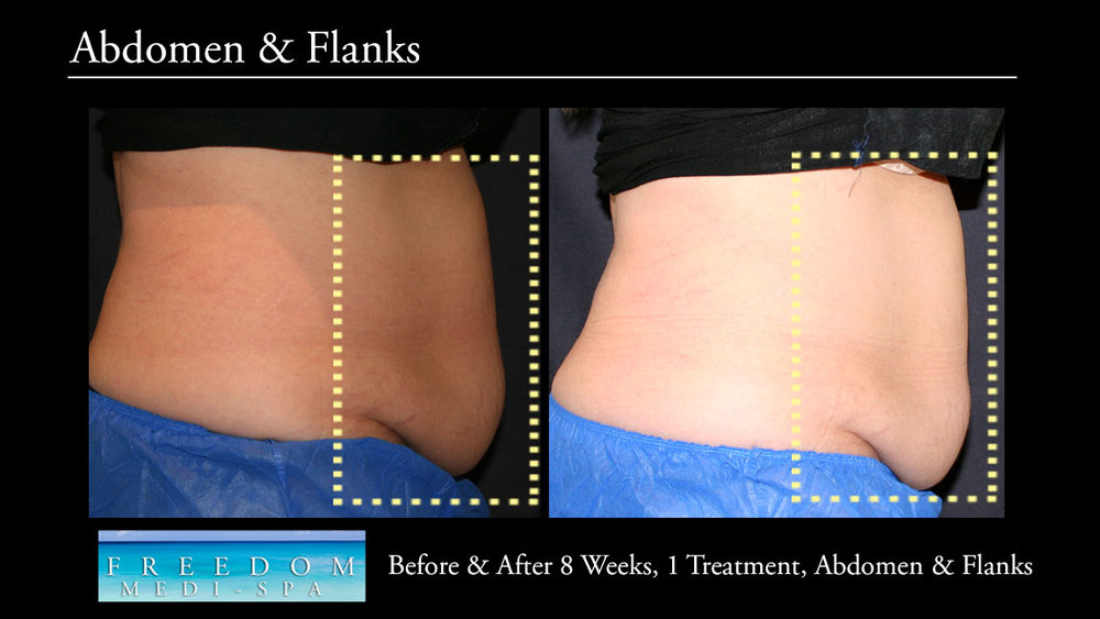 SculpSure Abs Flanks Sept 2017 5.jpg
