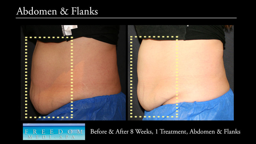 SculpSure Abs Flanks Sept 2017 4.jpg