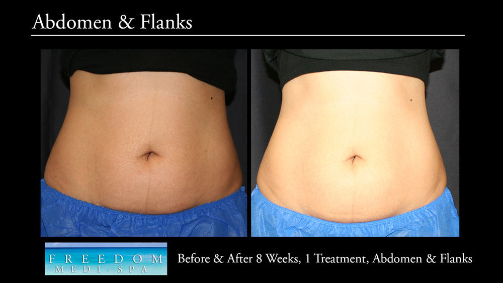 SculpSure Abs Flanks Sept 2017 3.jpg