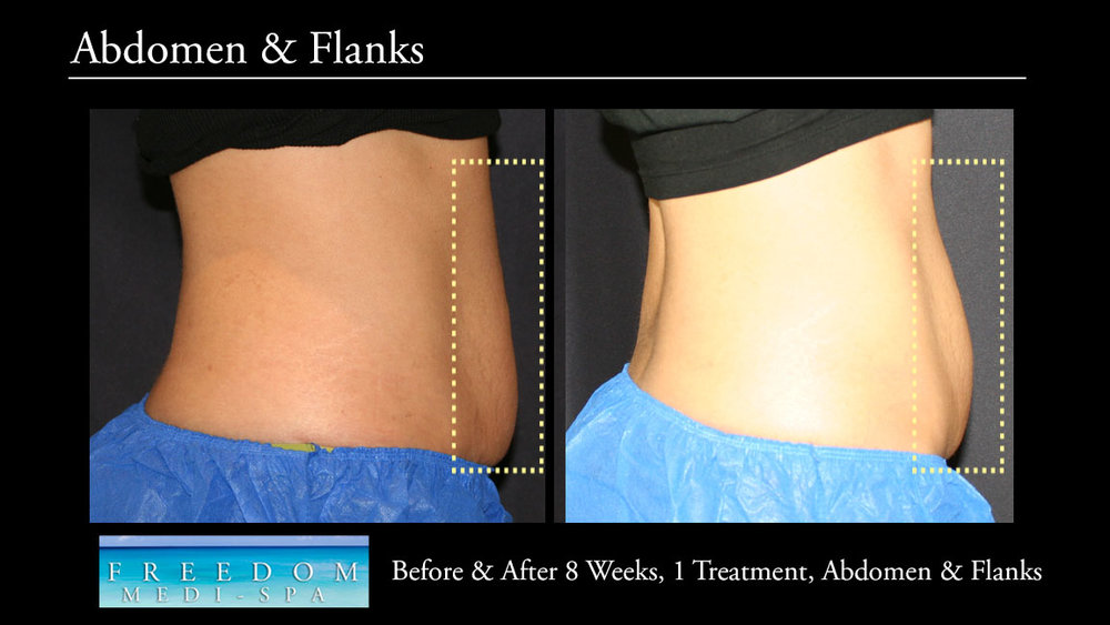 SculpSure Abs Flanks Sept 2017 2.jpg